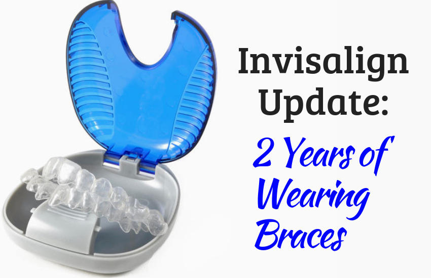 Invisalign Update: 2 Years Of Wearing Braces