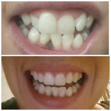 teeth before and after invisalign